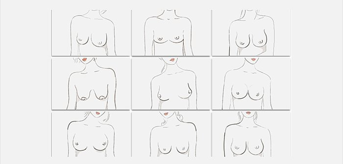 From Breast Shape Dictionary - ThirdLove