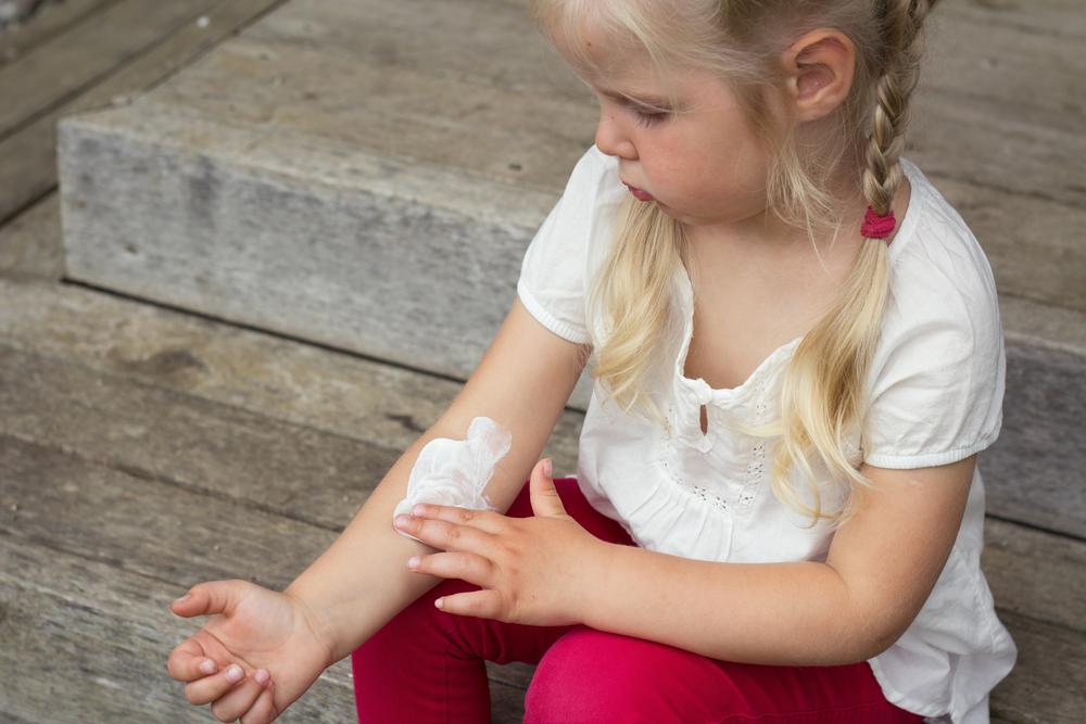 子供のアトピーは親のせい? 我が子の自然免疫を高める6つの食材