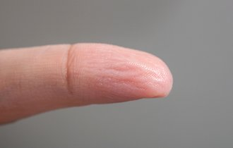 【冬本番】ふやけたような指のシワシワが日中に出たら何のサイン?