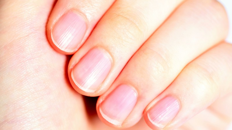 爪の縦線は病気のシグナル 爪からわかる病の兆候とは まぐまぐ