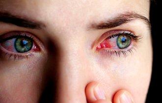 「目の充血」はどうして起こるの? 簡単にできる解消法とは