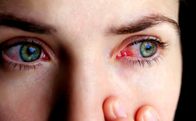 目の充血 はどうして起こるの 簡単にできる解消法とは まぐまぐ