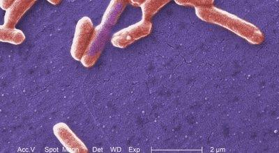 Escherichia_coli_O157-H7_CDC_ID-10071.tif