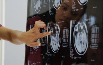医学界が震撼。がんや脳梗塞を迅速に発見できる画期的な診断法