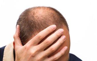理研とベンチャーが開発。毛髪1万本が20日で再生するメカニズム