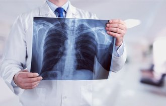 現役医師が警告。高齢者以外にも急増してる「レジオネラ肺炎」