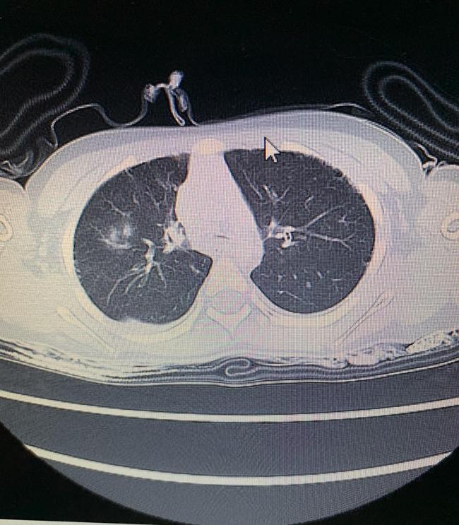 優空君の死亡時、肺のCT写真